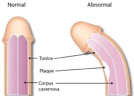 Νόσος Peyronie